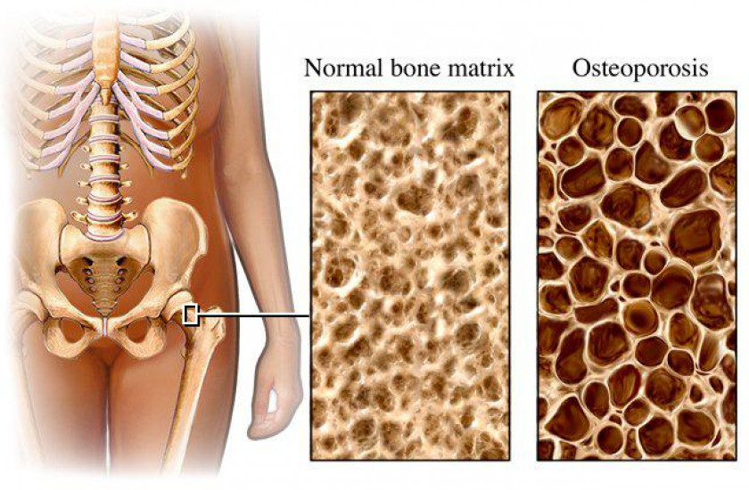 a look at the significant health problem of osteoporosis First, the good news: osteoporosis is a condition that is both preventable and treatable if caught in time however, the bad news is that there is not enough awareness of the opportunities for prevention and treatment of osteoporosis, and too many people, mostly women over the age of 50, suffer significant illness, deformity and sometimes death from this condition.